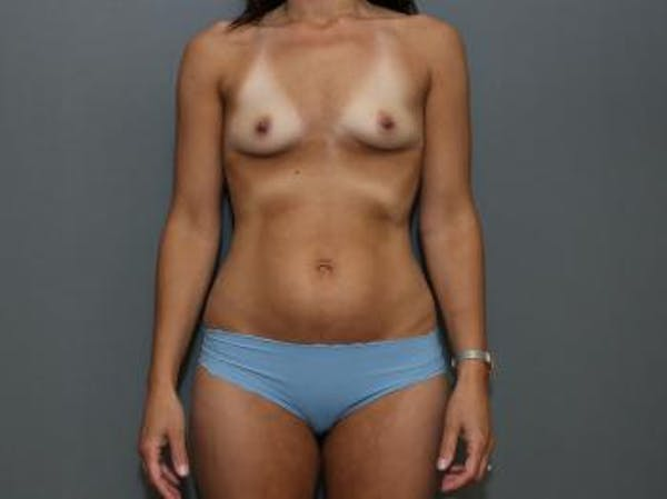Mommy Makeover Gallery - Patient 5089678 - Image 1