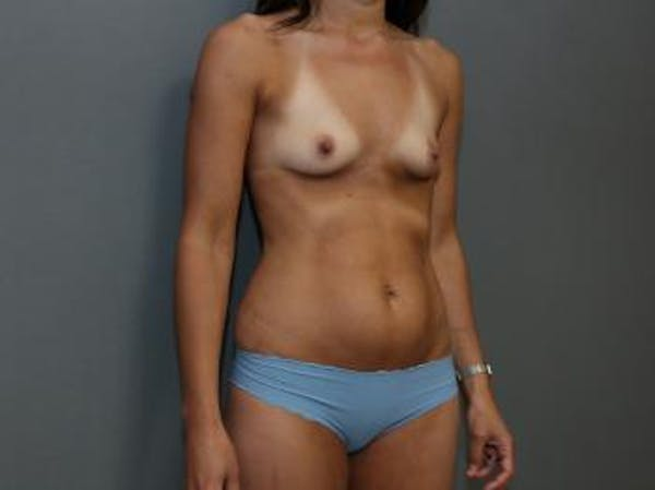 Mommy Makeover Gallery - Patient 5089678 - Image 3