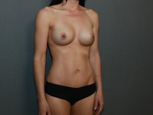 Mommy Makeover Gallery - Patient 5089678 - Image 4