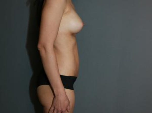 Mommy Makeover Gallery - Patient 5089678 - Image 6