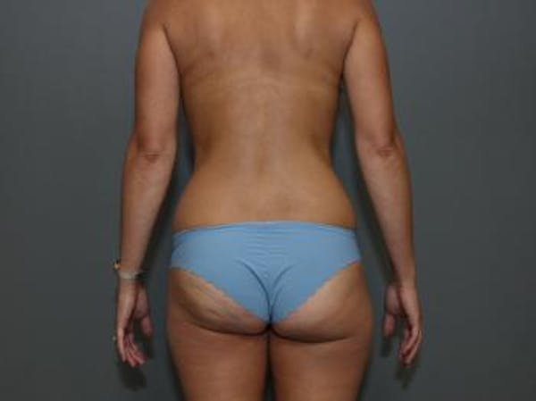 Mommy Makeover Gallery - Patient 5089678 - Image 7