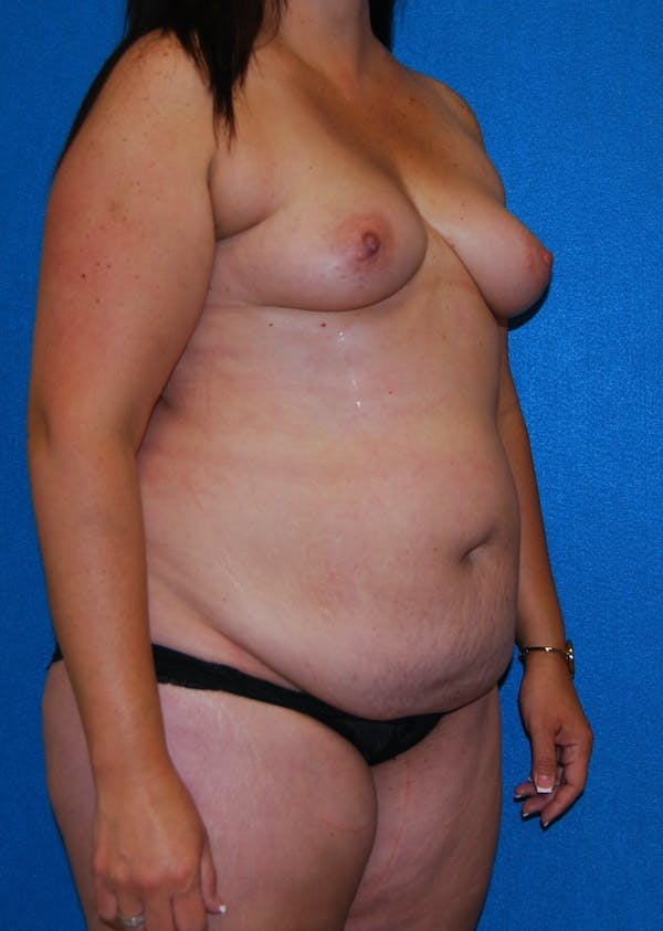 Mommy Makeover Gallery - Patient 5089938 - Image 3