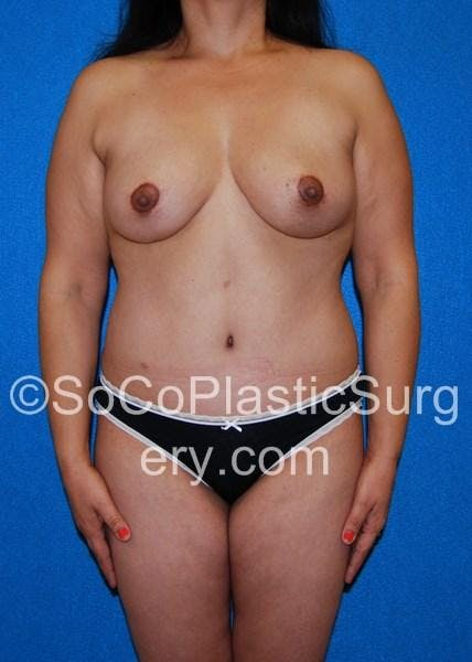 Mommy Makeover Gallery - Patient 5090136 - Image 2