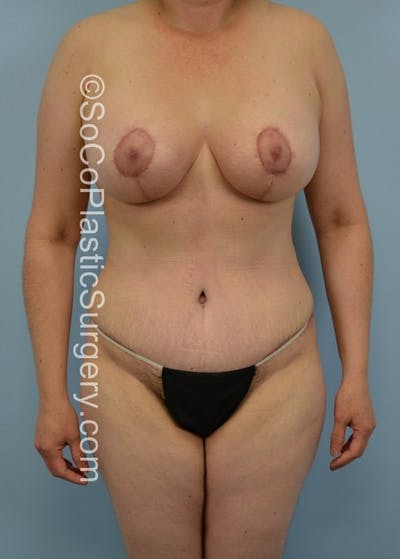Mommy Makeover Gallery - Patient 5090187 - Image 2