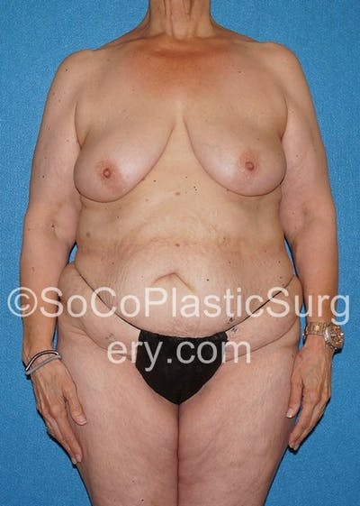 Mommy Makeover Gallery - Patient 5090263 - Image 10