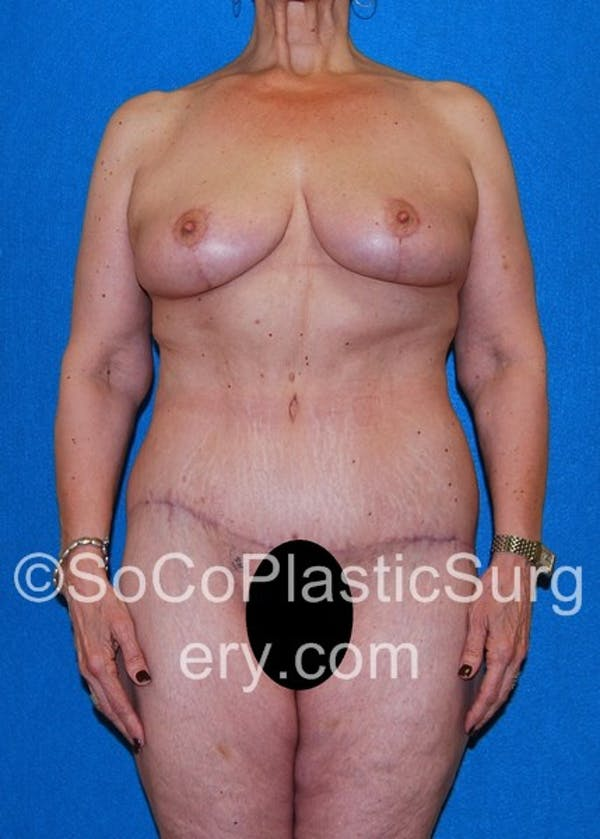Mommy Makeover Gallery - Patient 5090263 - Image 2