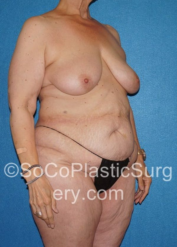 Mommy Makeover Gallery - Patient 5090263 - Image 3