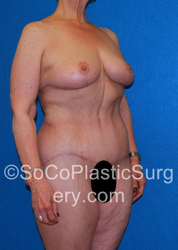 Mommy Makeover Gallery - Patient 5090263 - Image 4