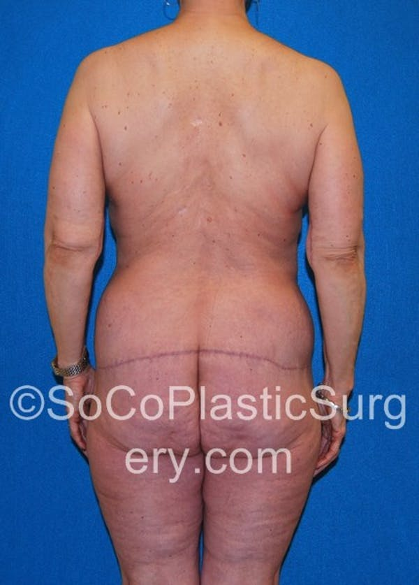 Mommy Makeover Gallery - Patient 5090263 - Image 8