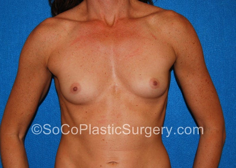 Breast Augmentation Gallery - Patient 5090559 - Image 1