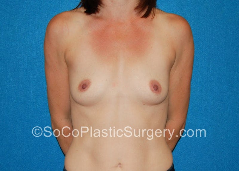 Breast Augmentation Gallery - Patient 5090771 - Image 1