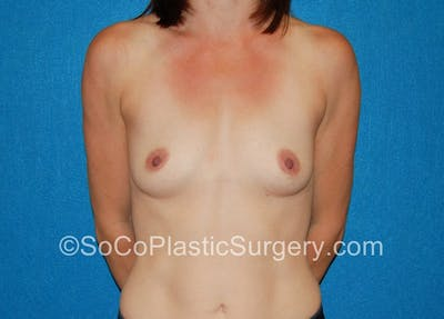 Breast Augmentation Gallery - Patient 5090771 - Image 7