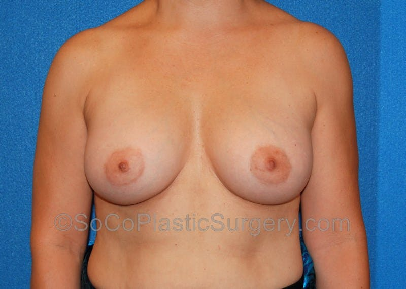 Breast Augmentation Gallery - Patient 5090988 - Image 2