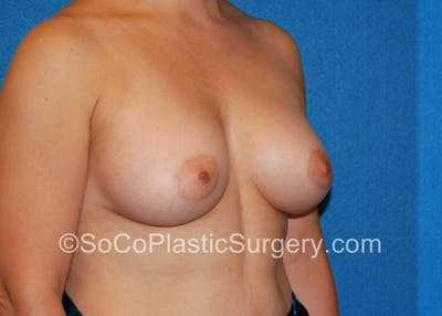 Breast Augmentation Gallery - Patient 5090988 - Image 4