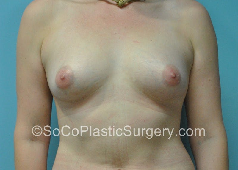 Breast Fat Transfer Gallery - Patient 5091200 - Image 2