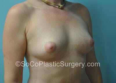 Breast Fat Transfer Gallery - Patient 5091200 - Image 4