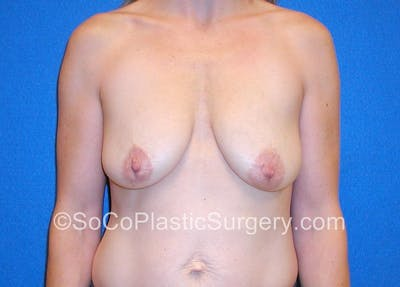 Breast Lift Gallery - Patient 5091280 - Image 1