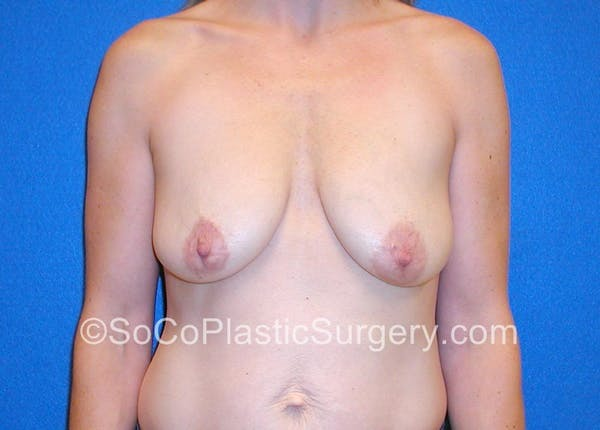 Close up on Before and After Breast Lift in Irvine
