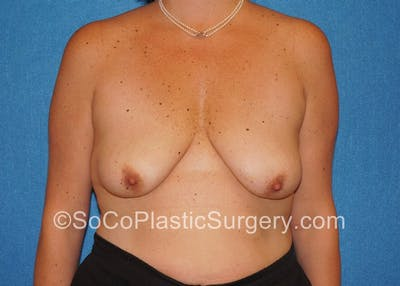 Breast Lift Gallery - Patient 5091555 - Image 1
