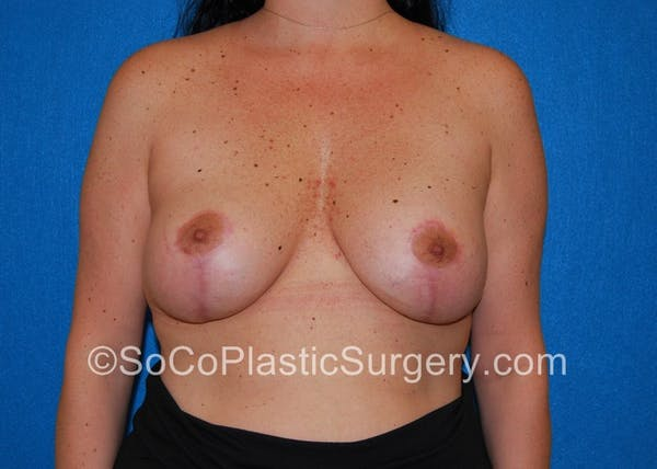 Breast Lift Gallery - Patient 5091555 - Image 2
