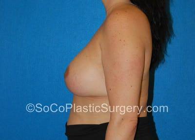 Breast Lift Gallery - Patient 5091555 - Image 6