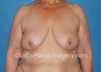 Breast Lift Gallery - Patient 5091696 - Image 1