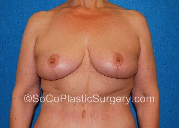 Breast Lift Gallery - Patient 5091696 - Image 2