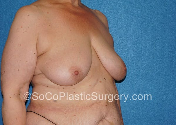 Breast Lift Gallery - Patient 5091696 - Image 3