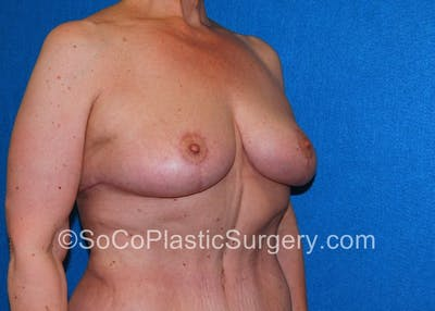 Breast Lift Gallery - Patient 5091696 - Image 4