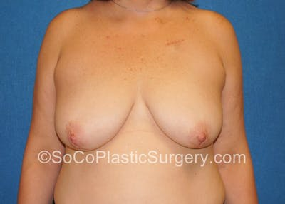 Breast Lift Gallery - Patient 5091817 - Image 8