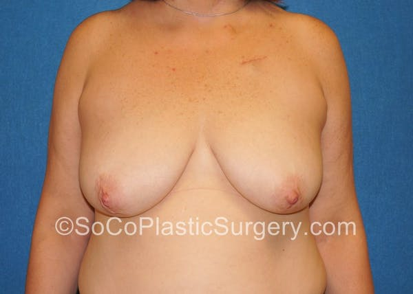 Breast Lift Gallery - Patient 5091817 - Image 1
