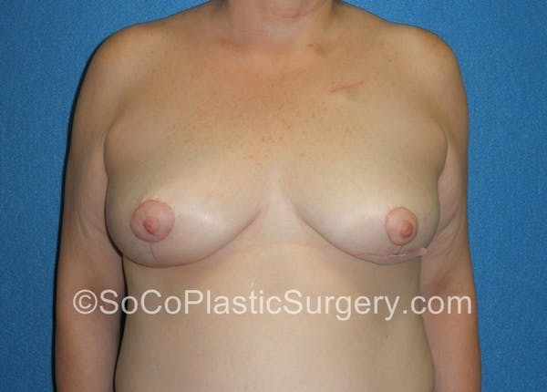 Breast Lift Gallery - Patient 5091817 - Image 2