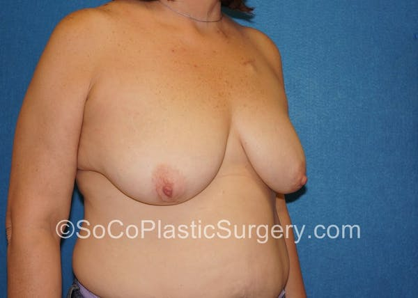 Breast Lift Gallery - Patient 5091817 - Image 3