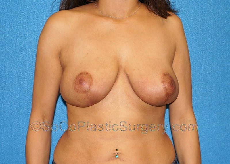 Breast Lift Gallery - Patient 5091876 - Image 2