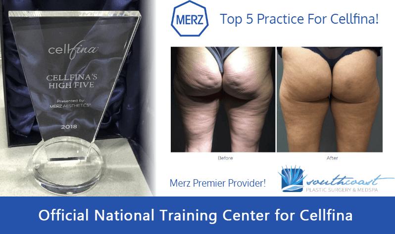 Cellfina Orange County Non Surgical Cellulite Reduction Irvine
