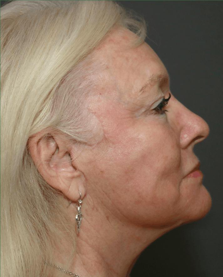 Halo Skin Resurfacing Gallery - Patient 5147246 - Image 1