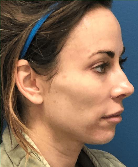 Halo Skin Resurfacing Gallery - Patient 5147252 - Image 1