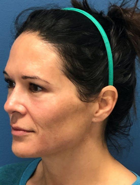 Halo Skin Resurfacing Gallery - Patient 5147255 - Image 1