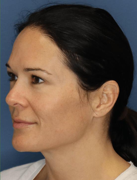 Halo Skin Resurfacing Gallery - Patient 5147255 - Image 2