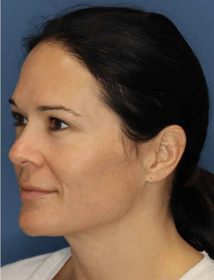 Halo Skin Resurfacing