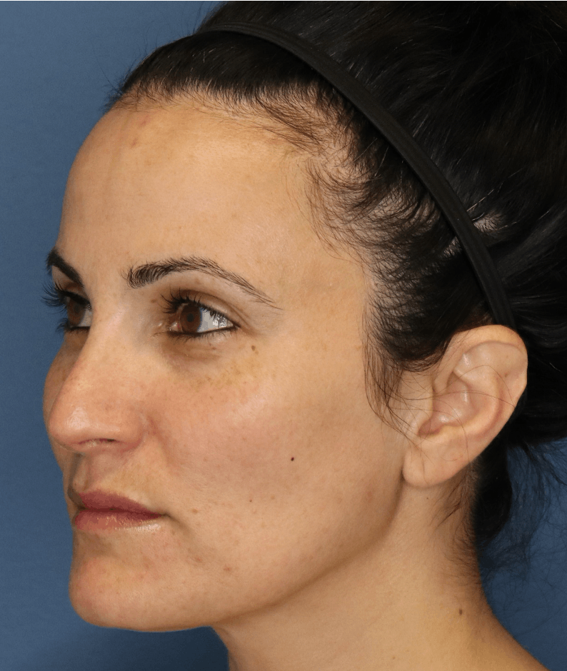 Halo Skin Resurfacing Gallery - Patient 5147257 - Image 2