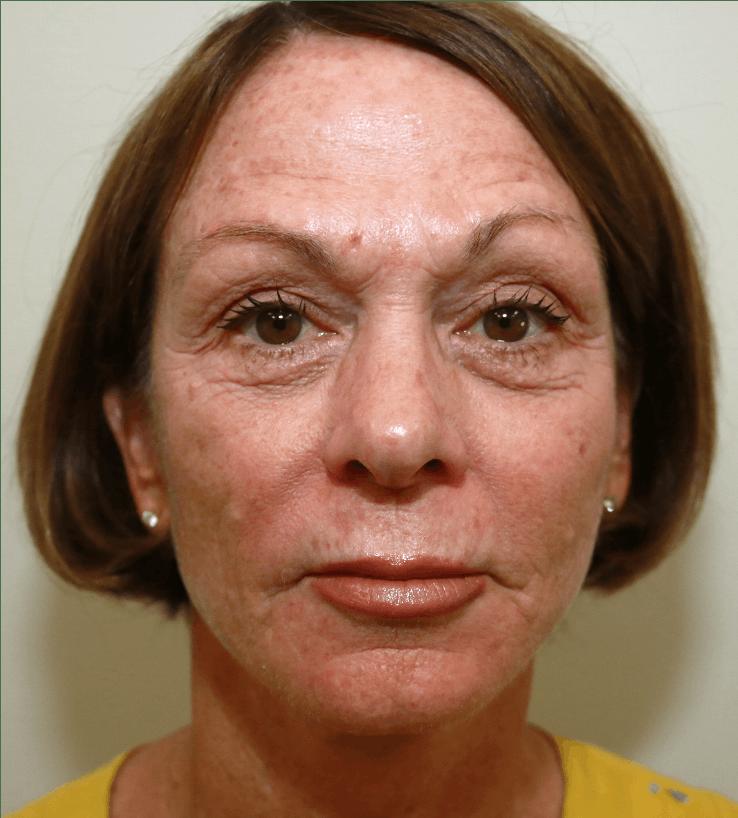 Halo Skin Resurfacing Gallery - Patient 5147263 - Image 1