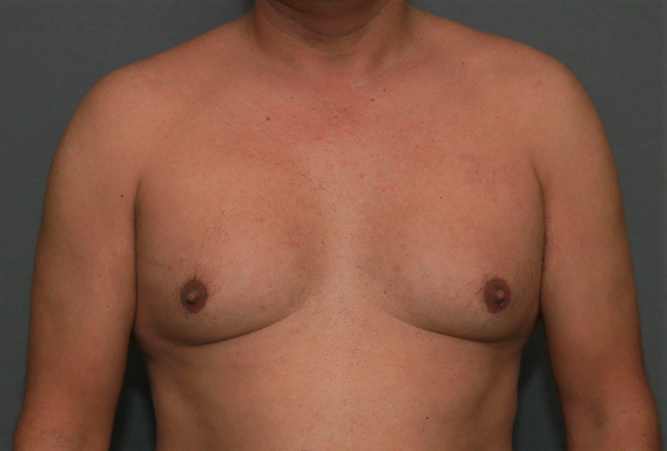 Gynecomastia Gallery - Patient 5157967 - Image 1