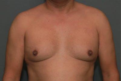 Gynecomastia Gallery - Patient 8284596 - Image 1
