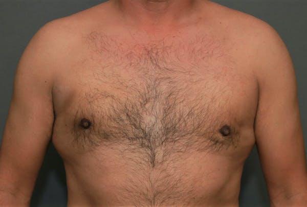Gynecomastia Gallery - Patient 5157967 - Image 2