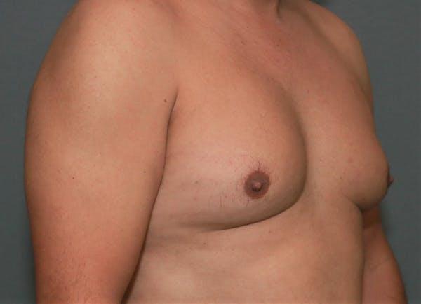 Gynecomastia Gallery - Patient 5157967 - Image 3
