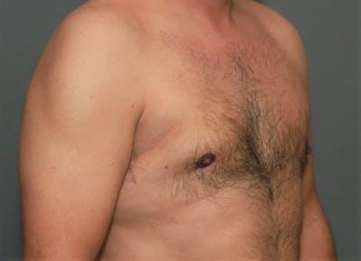 Gynecomastia Gallery - Patient 5157967 - Image 4
