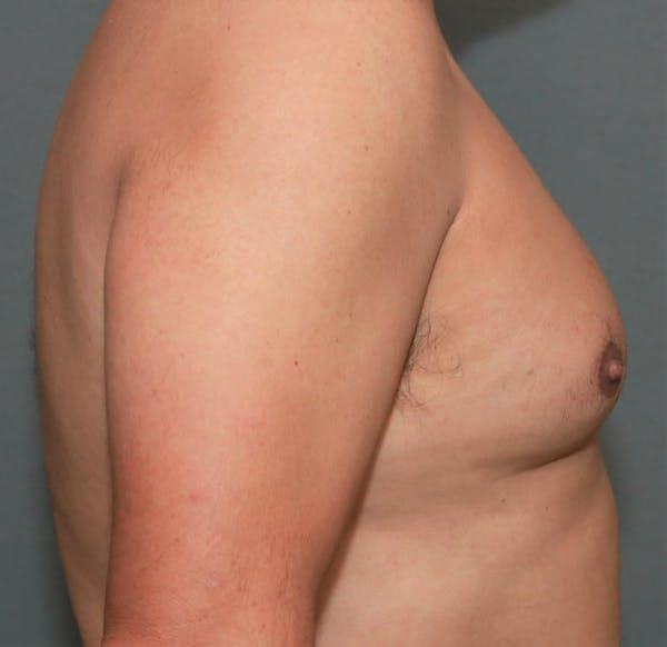 Gynecomastia Gallery - Patient 5157967 - Image 5