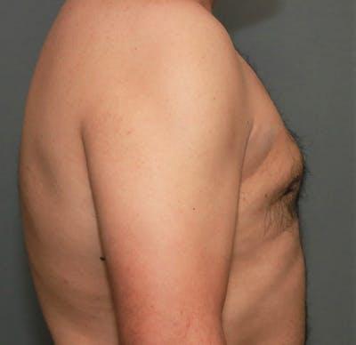 Gynecomastia Gallery - Patient 5157967 - Image 6