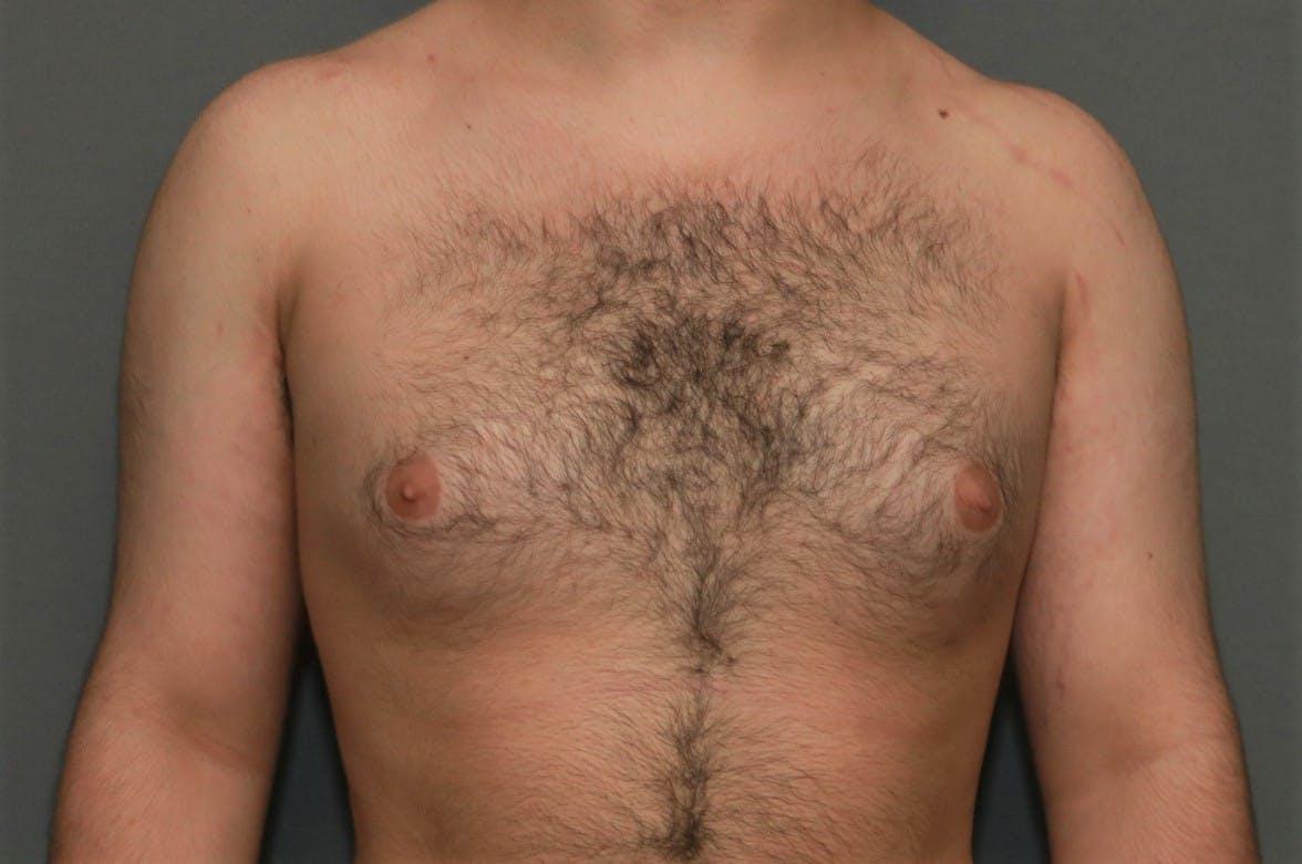 Gynecomastia Gallery - Patient 5157968 - Image 1
